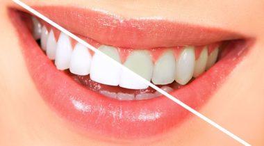 Blanqueamiento Dental en Sant Mateu