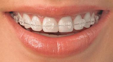 Ortodoncia Sant Mateu